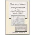 DE: Nachweis und Aufzeichnung der Pulsveränderungen RAC oder