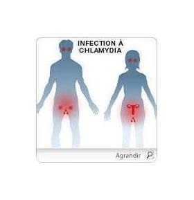 Vous êtes infecté par Chlamydia trachomatis, notre patch vous aidera à lutter contre cette bactérie.