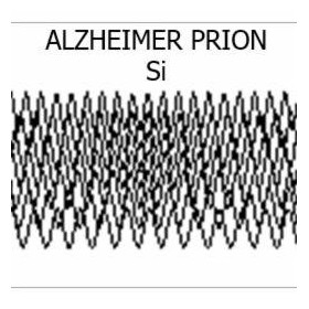 A prion responsible for Alzheimer's disease?